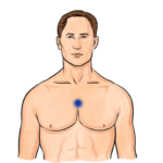 thymus-tapping